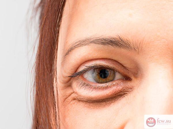 Косметический недостаток или болезнь