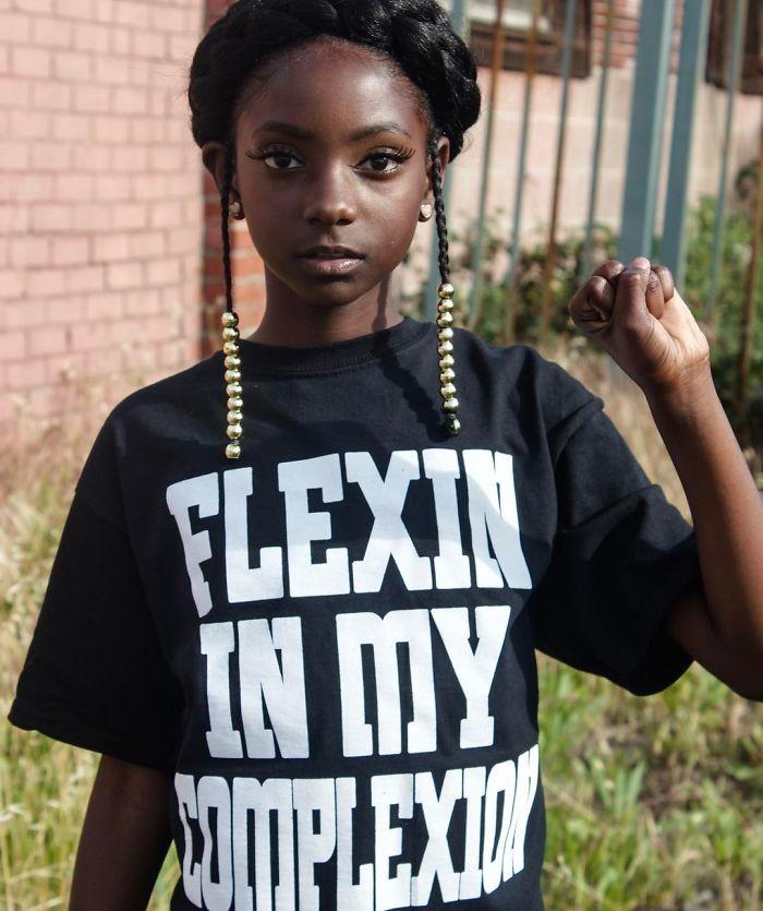 Знакомьтесь, 10-летняя Кхерис Роджерс девочка, история, кожа, одежда