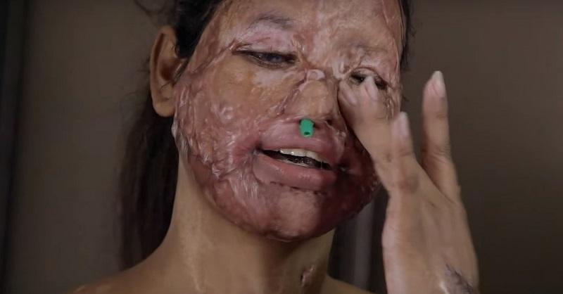 Парень вылил ей в лицо кислоту