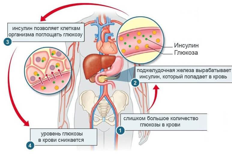 Как понять, что повышен уровень инсулина