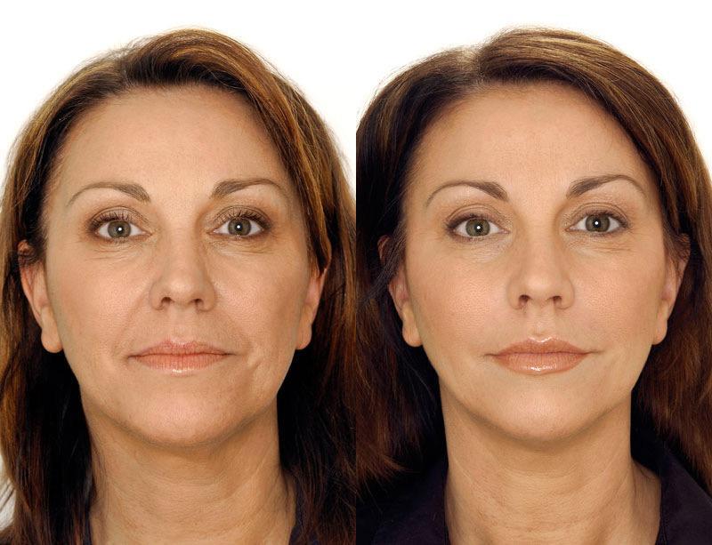 Эта простая омолаживающая процедура для лица дает потрясающий результат