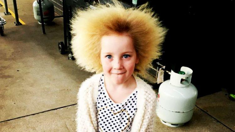 Расчеши меня полностью! Из-за редкой генетической аномалии девочка не может справиться с волосами