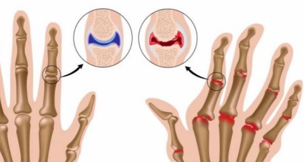 Лечение артрита с помощью народных средств