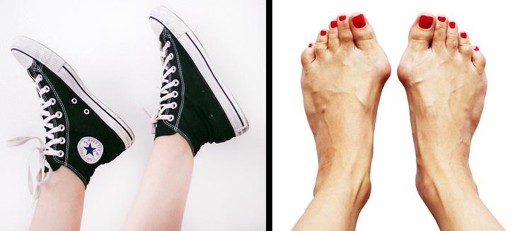 8 обычных предметов одежды, которые опасно носить каждый день