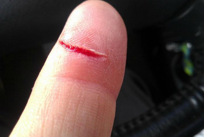 Как лечить глубокий порез на руке