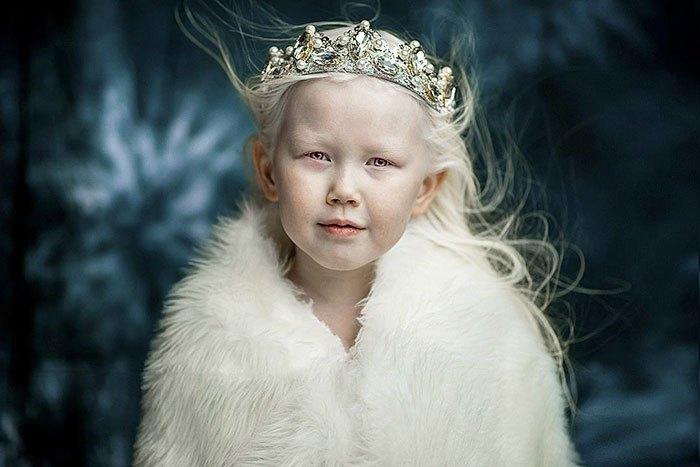 Белоснежка из Якутии: 8-летняя девочка-альбинос покорила Интернет