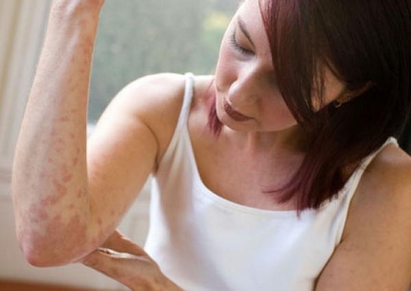 Народные методы лечения опоясывающего лишая