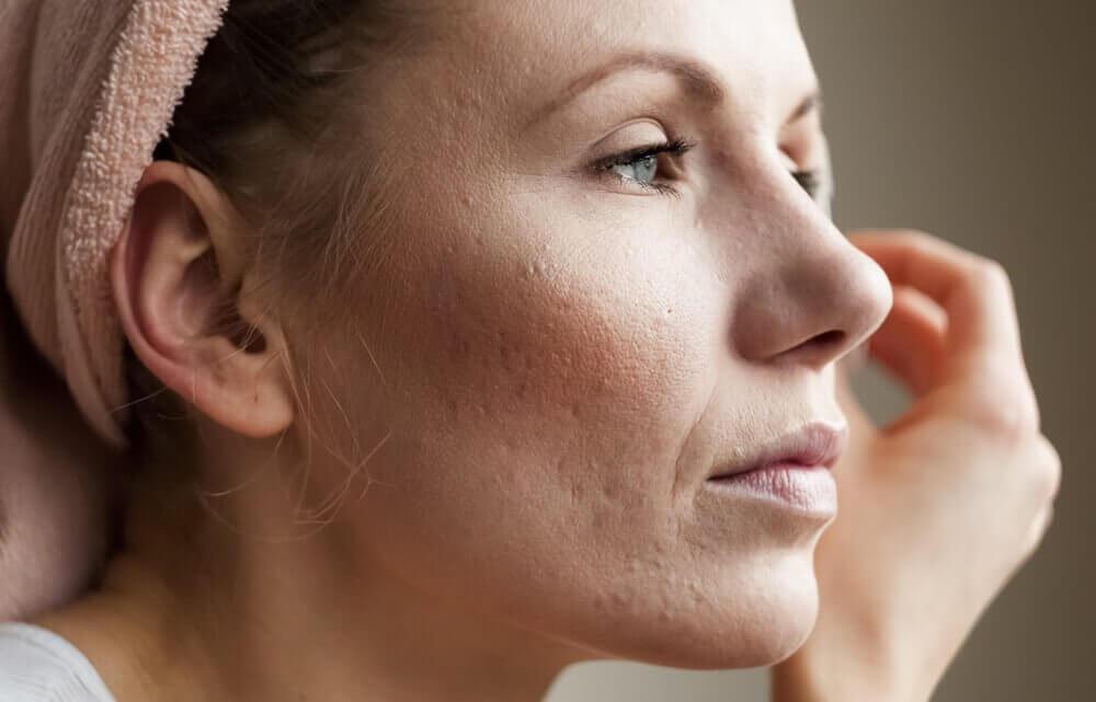 8 советов, как сузить поры