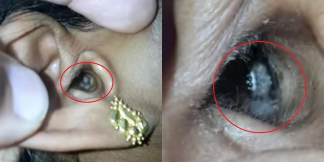 Женщина пожаловалась на головную боль: виновником оказался паук, который поселился в ухе
