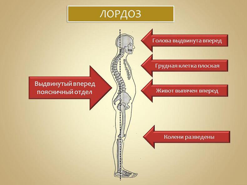 Упражнения для правильной осанки и устранения дефектов костно-мышечной