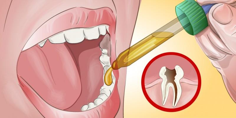 Как снять сильную боль с зубами