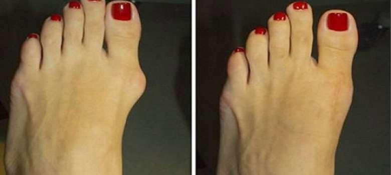 Эффективный метод Н.Н. Штаба избавит от болезненной шишки на ноге