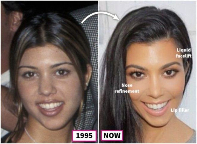 Женщины семейства Кардашьян до и после пластических операций