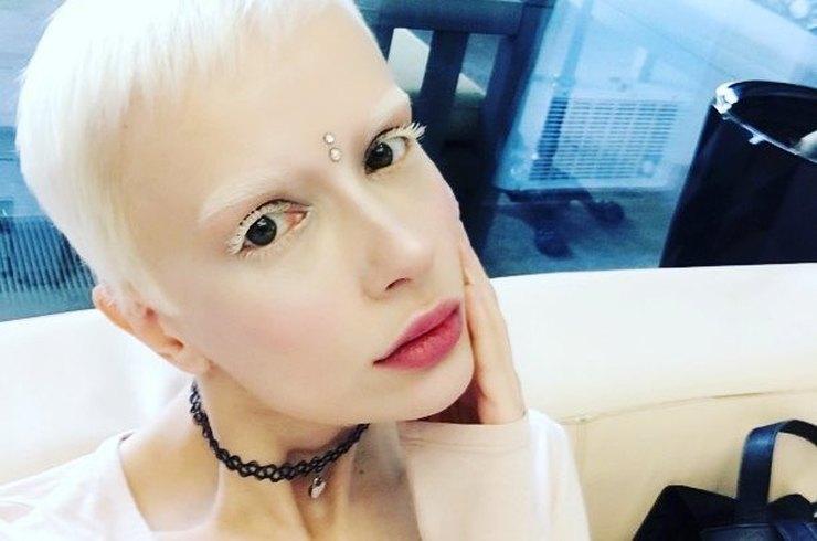 Девушка-альбинос из шоу «Холостяк» рассказала об особенностях своей болезни