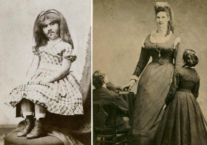 Дамы - вперед: цирковые диковинки XIX века