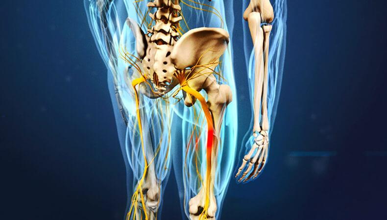 Как разблокировать седалищный нерв: 2 простых способа снять боль