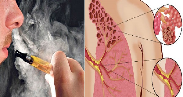 Оказывается, электронные сигареты вызывают ужасную болезнь «попкорн легких»