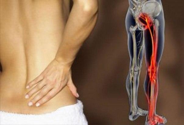 Седалищный нерв и варинты его лечения