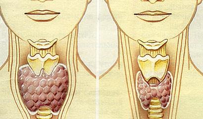 Щитовидная железа: проблемы, симптомы и признаки заболевания