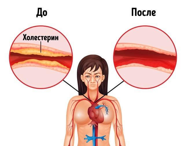 Эффективно снижает уровень холестерина
