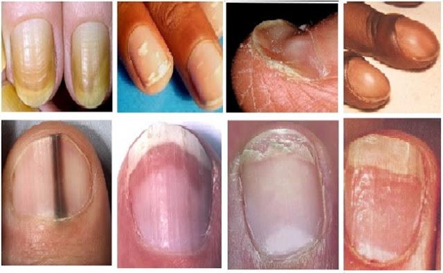 Виды грибка на ногтей