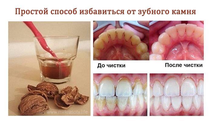Удаление зубного в домашних условиях
