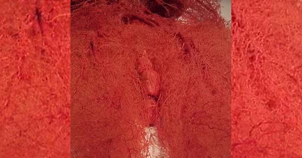 Как выглядят кровеносные сосуды в человеческом теле