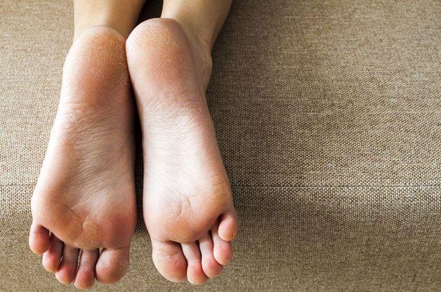 Как правильно ухаживать за ступнями?