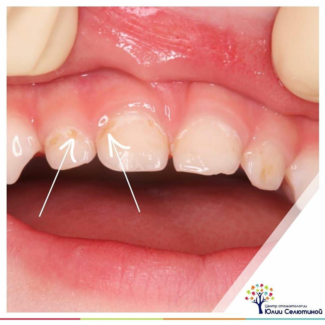 Как выглядит начальный кариес на молочных зубах?