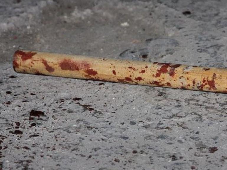 Украина: Зампредседателя херсонской Рады жестоко избили во дворе собственного дома