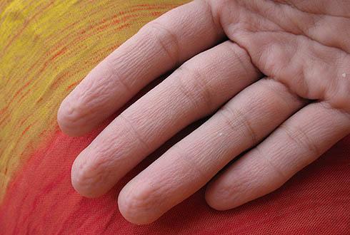 Почему пальцы на руках морщатся без воды