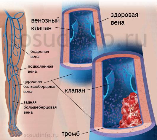 Тромбофлебит глубоких и поверхностных вен: острый и хронический. Диагностика, лечение, профилактика