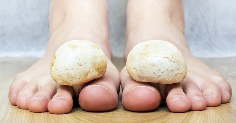 как вылечить грибок