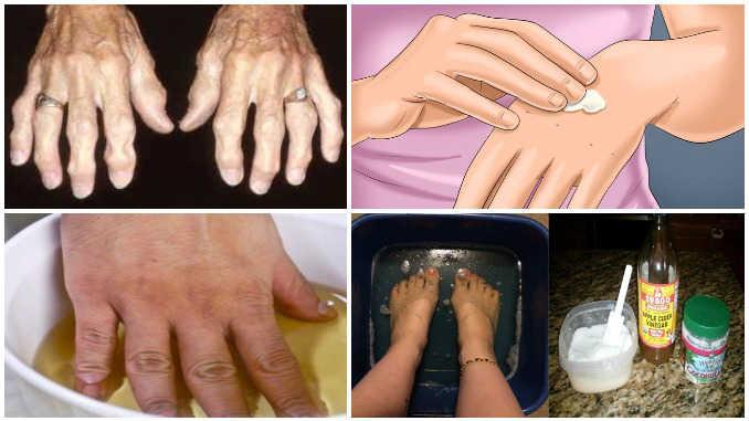 Народная медицина  при артрите
