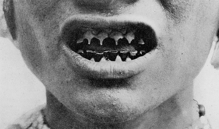 Заточенные зубы.