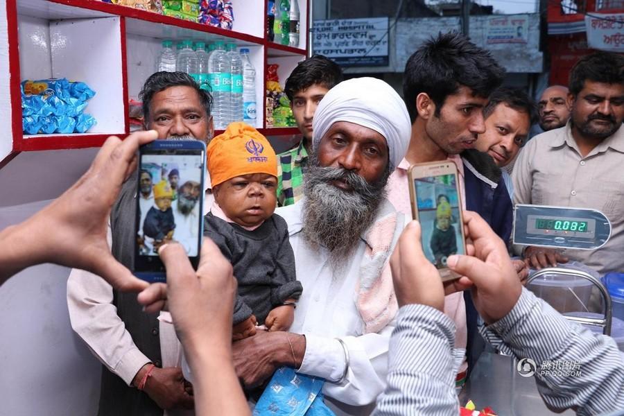 21-летний индиец застрял в теле младенца