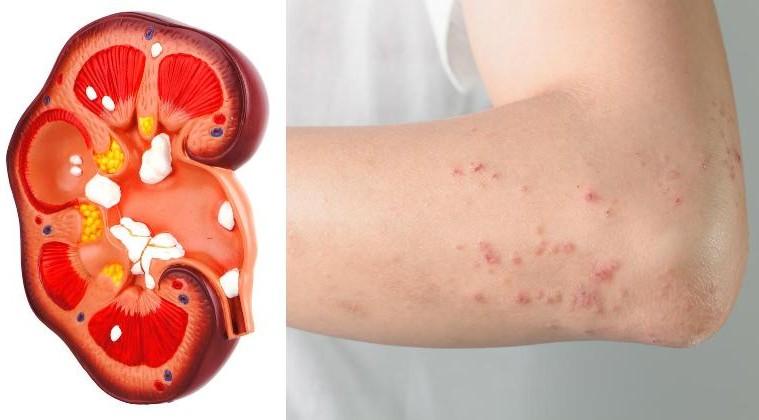 8 симптомов повреждения почек, которые большинство из нас игнорирует!