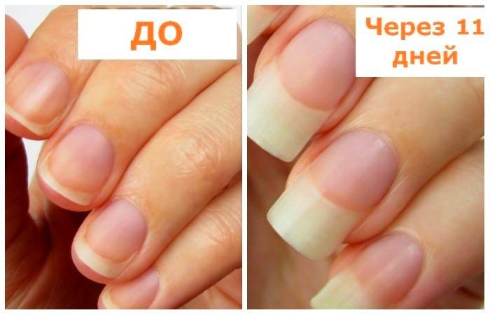 3 доступных ингредиента, которые ускоряют рост ногтей в два раза