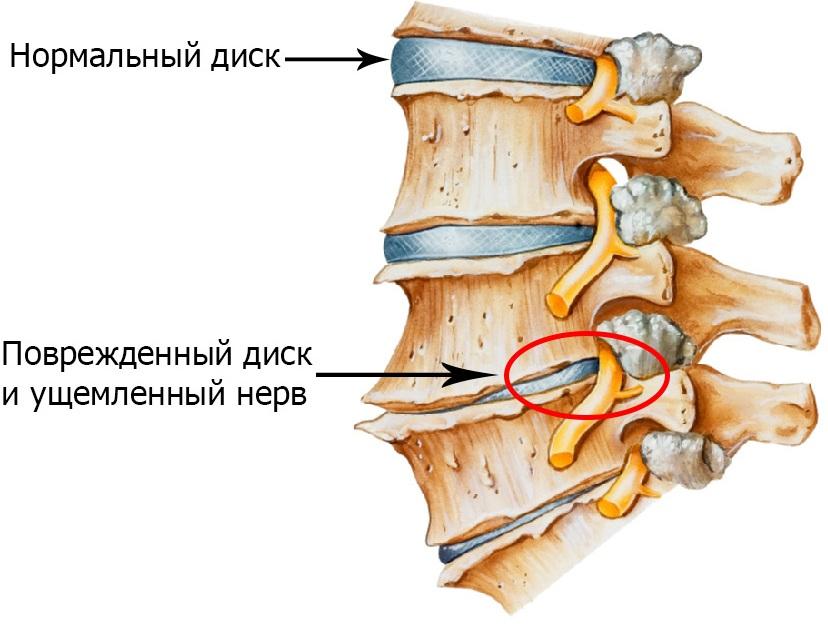 Остеохондроз шейного отдела: симптомы, причины, упражнения для ...