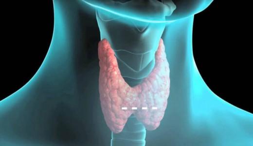 Щитовидная железа: психосоматика проблемы