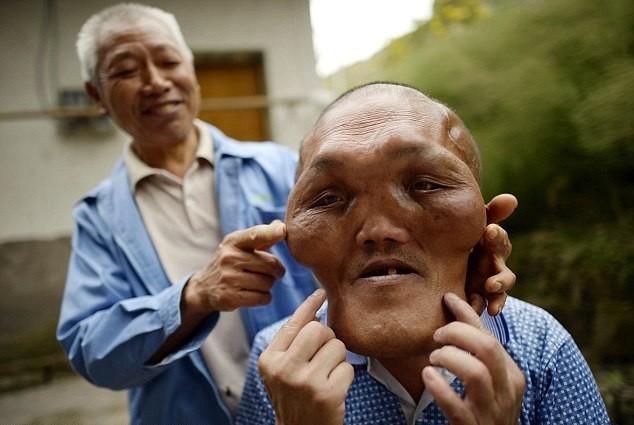 """В Китае живет человек с """"лицом инопланетянина"""""""