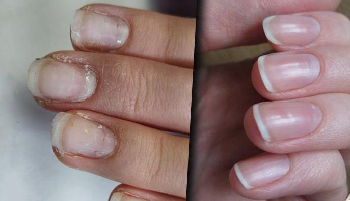 5 средств восстановить ногти…