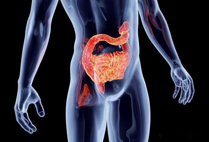 Исцелите свой кишечник: 2 переменные, которые определяют здоровье кишечника