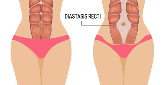 3 признака диастаза мышц (и как это исправить)