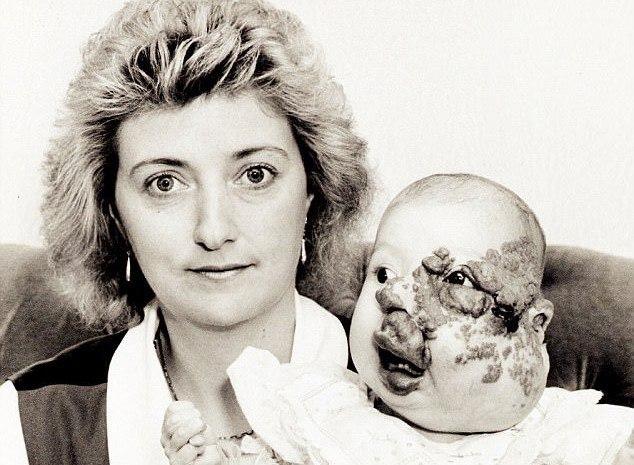 Чудеса бывают: британка, которая родилась с уродством на лице, вышла замуж