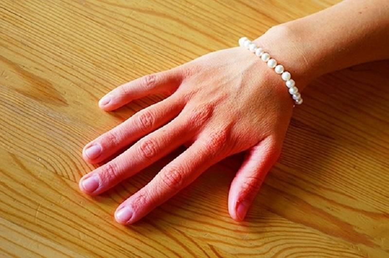 проблемы со здоровьем по руках