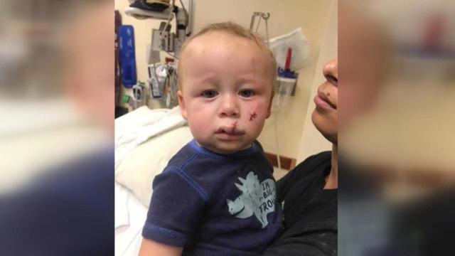 Малыш пострадал в результате запуска дрона в парке