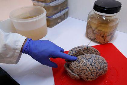 В мозге обнаружен источник человеческого сознания