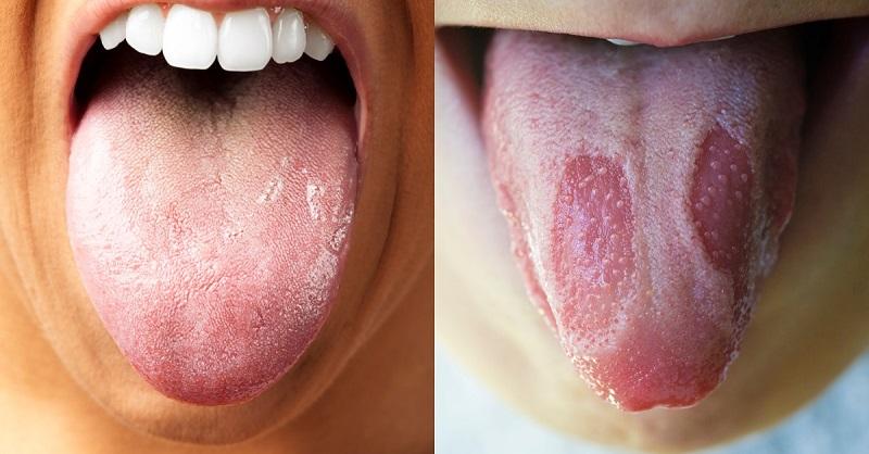определение болезней по внешнему виду