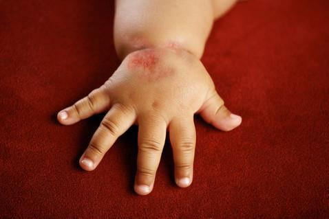 Атопический дерматит у детей…